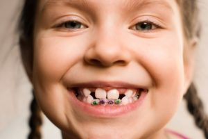 young girl smiling wearing braces